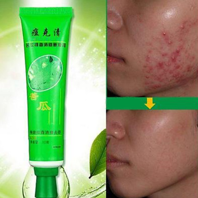 Removal Acne Cream Spots Scar Stretch Marks Treatment Cream Skin Care